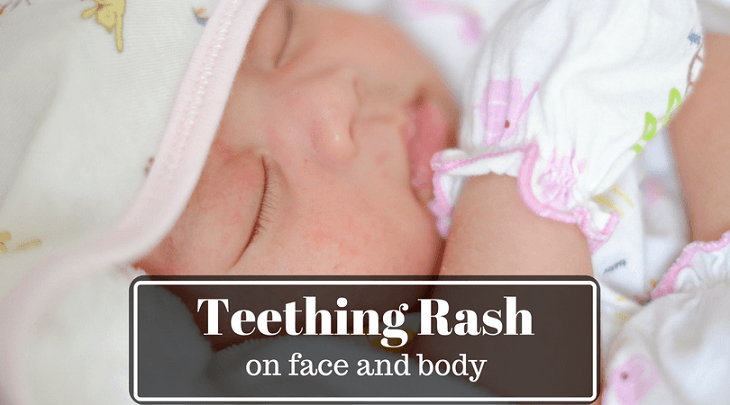 teething rash on face, body