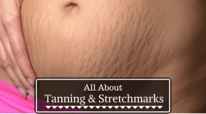 Does Tanning Help Stretch Marks