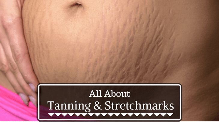 Does Tanning Help Stretch Marks? The Truth Behind - Well Being Kid