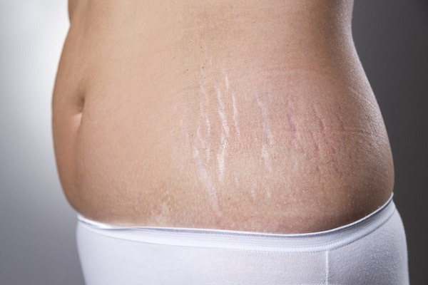 stretch marks on belly