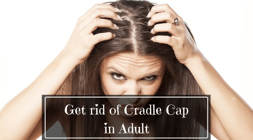 Get rid of cradle cap in adult