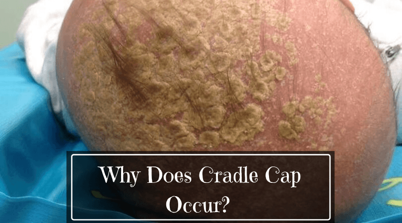 why cradle cap occur