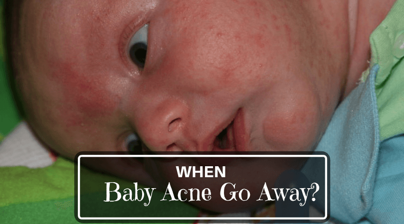 when baby acne go away